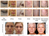 Máquina profissional do IPL da remoção do cabelo da remoção da cicatriz da acne do rejuvenescimento da pele