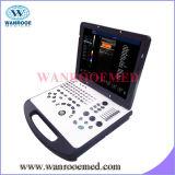 Us350 Scanner van de Diagnose van het Karretje van het Ziekenhuis de Digitale Ultrasone