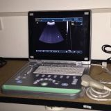 LCD Screen를 가진 가득 차있는 Digital Ultrasound Scanner