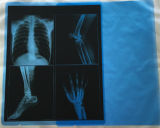 青い医学のフィルムの乾燥したX線フィルム