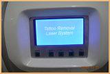 Máquina portátil da remoção do tatuagem do laser do interruptor de Q