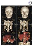 Película de raio X médica da impressão de cor para o hospital