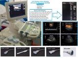 Système diagnostique d'échographie-Doppler de couleur du coût bas 4D