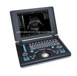 Ausgezeichnetes Bild-Digital-beweglicher Ultraschall-Scanner Ysd4300