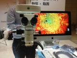 운영 현미경 비데오 카메라 접합기