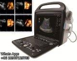 Máquina cardiaca portable del ultrasonido de Doppler 3D 4D del color de la computadora portátil