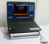 携帯用カラー超音波装置