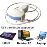 Explorador móvil del ultrasonido del USB del bolsillo para el sistema de XP Vista Winows7 8