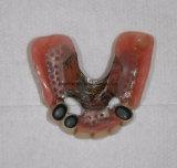 中国の歯科実験室からの望遠鏡の合成の総義歯