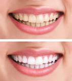 Zahnmedizinische 35% Hyperoxyd-Zähne des Fabrik-Preis-, diegel weiß werden
