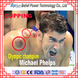 Chinese Traditional Fire Cupping Chinese Medicine