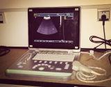 De promotie Laptop van de Hoge Resolutie Scanner van de Ultrasone klank