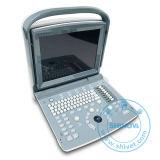 Scanner vétérinaire d'ultrason (SonoScan E1V)
