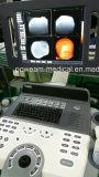 4D Mobile Color Doppler con 4 conectores de sonda (D50)