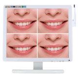 17 Zoll-Bildschirm-zahnmedizinische intra-orale Kamera mit Monitor