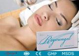 Profilo cutaneo antinvecchiamento del Facial di figura dell'iniezione del riempitore di Reyoungel ha