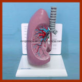 人間の肺解剖モデル