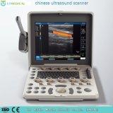 Ultrasonido fetal y vascular del equipamiento médico del color de Doppler