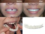 Zahnmedizinische Schutzkappe auf Lächeln mit den vollen Bogen-Uniform-Zähnen
