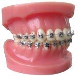 Parentesi ortodontica del metallo di nuove vendite calde