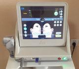 De Machine van de Lift van het Gezicht van de Ultrasone klank van de Hoge Intensiteit van Hifu