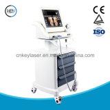 Máquina de Hifu para o equipamento facial do salão de beleza da beleza de Hifu do carrinho da beleza
