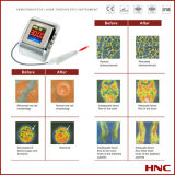 Handgelenk-Laser-Behandlung-Instrument (HY-30D)