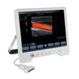 Touchscan Ts30 초음파 심상 의료 기기