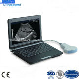 Best Priceの高級なLaptop Full DIGITAL Ultrasound