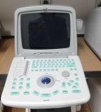 De goedkoopste Kleine en Lichte Draagbare Medische Scanner van de Ultrasone klank met Ce