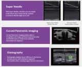 De medische Machine van de Ultrasone klank van Doppler van de Kleur van de Verkoop van Chison van het Ziekenhuis Q9 Hete 3D 4D