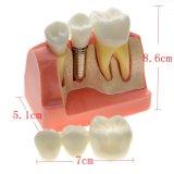 Zahnimplantat-Zahn-vorbildliches zahnmedizinisches Plastikmodell