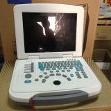 Preto portátil médico econômico - B branco - máquina do ultra-som