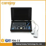 Máquina del ultrasonido de la computadora portátil de la plataforma de la PC con la batería convexa de la punta de prueba 3.5MHz con la Certificación-Maggie de Ce&ISO