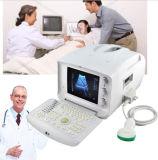 10 Machine/Scanner van de Ultrasone klank van de duim de de Draagbare met 3.5MHz Convexe sonde-Candice