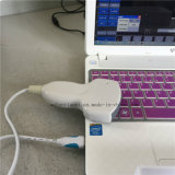 携帯用USBの超音波のスキャンナーのパッドの超音波