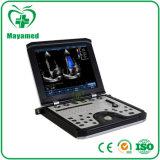 Prezzo cardiaco portatile medico della macchina di ultrasuono di Doppler di colore del sistema 3D 4D di ultrasuono di My-A039b con la sonda