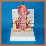 Modello umano di malattia comune del retto