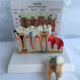 Modèle d'anatomie des soins dentaires (R080119)