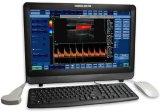 Bildschirm-beweglicher Farben-Doppler-Ultraschall