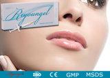 Llenador cutáneo de la inyección de Reyoungel Hyaluronate de la plenitud ácida del labio