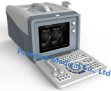 セリウムの公認の病院の医学のデジタル携帯用超音波のスキャンナー(WHYC6)