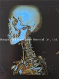 Горячее сбывание! Пленка рентгеновского снимка печатание лазера медицинская