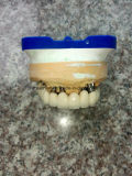 Puente atornillado matálico-cerámico dental del injerto