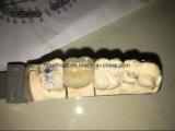 أسنانيّة [بفم] تاج يجعل من الصين مختبرة أسنانيّة