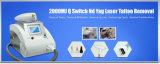 Schönheits-Salon bewegliche Nd YAG Laser-Tätowierung-Abbau-Maschine Mslyl02A