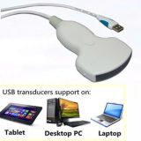 USBのプローブのラップトップのタブレットの携帯用超音波USG