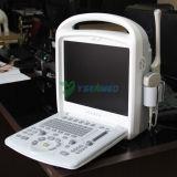 Varredor portátil diagnóstico médico do ultra-som de Doppler da cor Ysb-V3