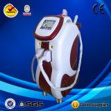 Sistema de tratamento da máquina da depilação do IPL/IPL