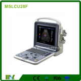 4D portatile Color Doppler Ultrasound Equipments/Ultrasound Machines